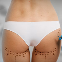 Brazilian Buttock Lift with fat transfer