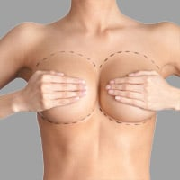 Mammoplasty (Breast Reduction)