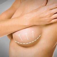 Mastopexy (Breast Uplift)